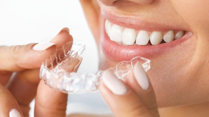 Thời gian niềng răng mất bao lâu thì hoàn tất? 7