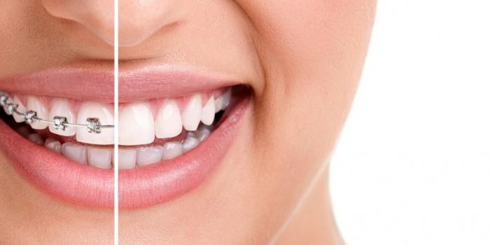 Thời gian niềng răng mất bao lâu thì hoàn tất? 1