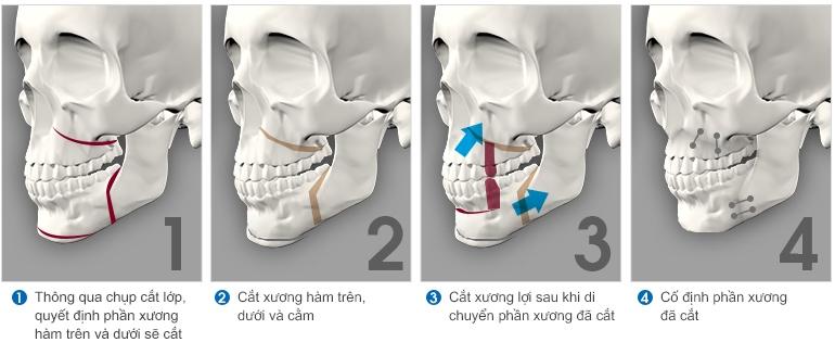 giải phẫu cắt xương hàm hô móm - 1