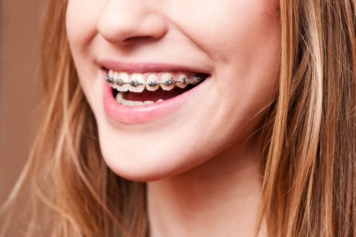 Niềng răng mắc cài kim loại chuẩn