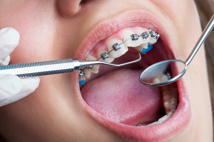 Thời gian niềng răng mất bao lâu thì hoàn tất? 2