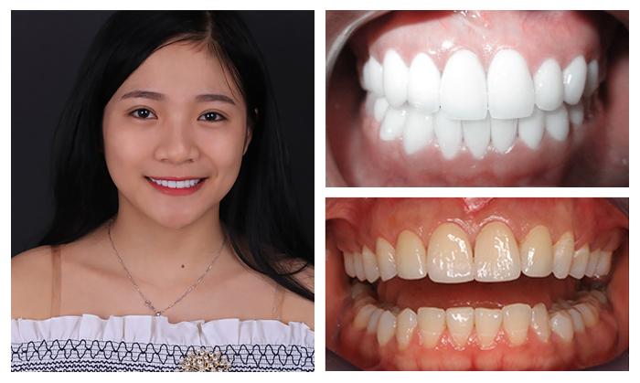 răng giả cao cấp 6