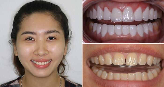 khách hàng bọc răng sứ thẩm mỹ tại Nha Khoa Kim