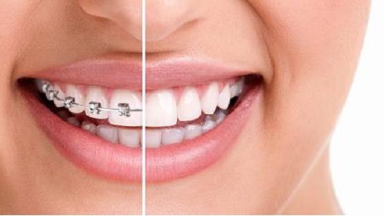 Niềng răng một hàm có được không, có mang lại hiệu quả không?