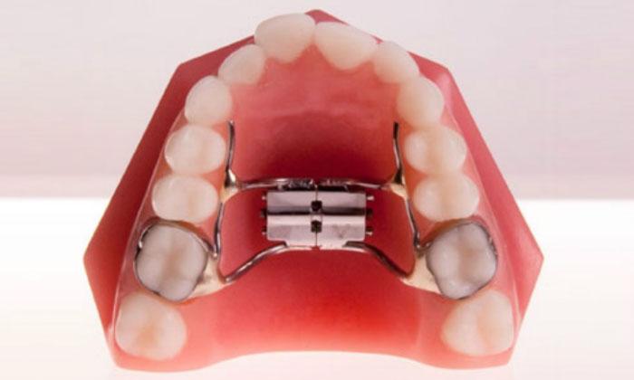 Khí cụ nới rộng hàm áp dụng cho những người có khoang miệng hẹp