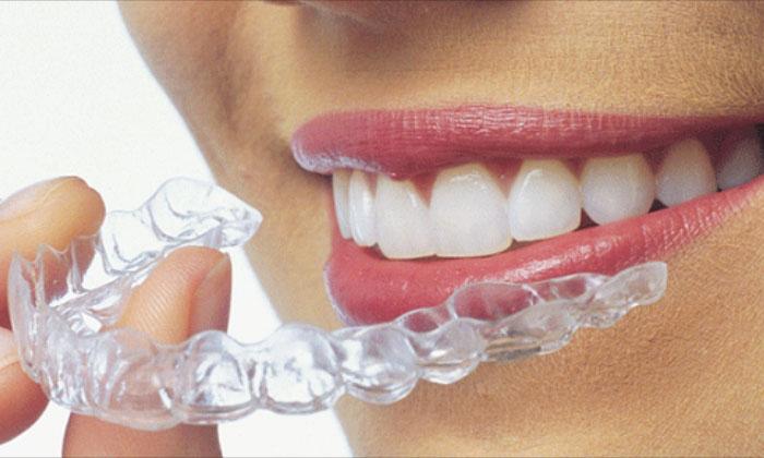 Khay niềng trong suốt Invisalign là phương pháp niềng răng tân tiến, đảm bảo hiệu quả và tính thẩm mỹ