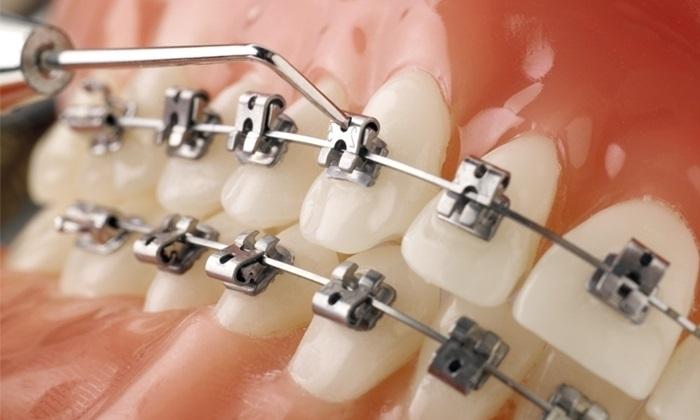 Mắc cài niềng răng tự buộc mang lại hiệu quả cao hơn và rút ngắn thời gian điều trị so với mắc cài cổ điển