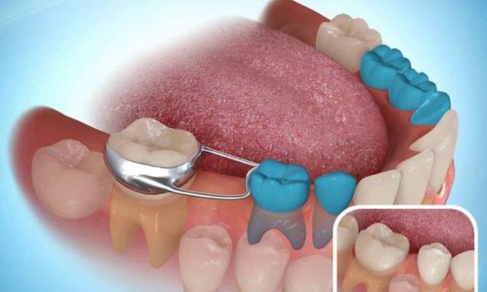 Khung giữ khoảng trống giúp răng trẻ không mọc xiên vẹo, xô lấn nhau