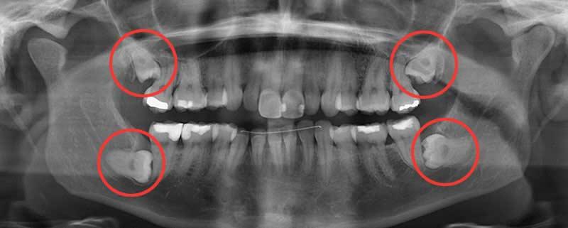 Ảnh X-quang cho thấy sự hiện diện và hướng của răng khôn.