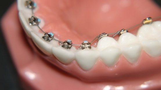 Niềng răng mắc cài mặt lưỡi – Phương pháp niềng bí mật