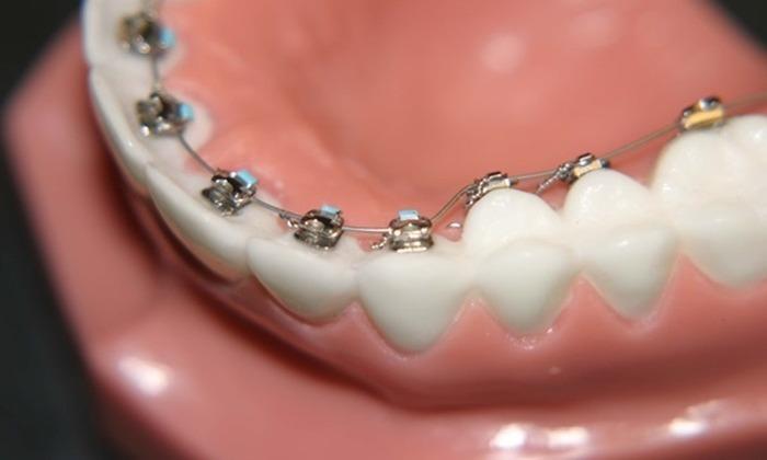 Vị trí mắc cài gây khó khăn cho việc vệ sinh răng miệng
