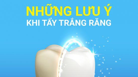 Những điều cần biết trước khi tiến hành tẩy trắng răng