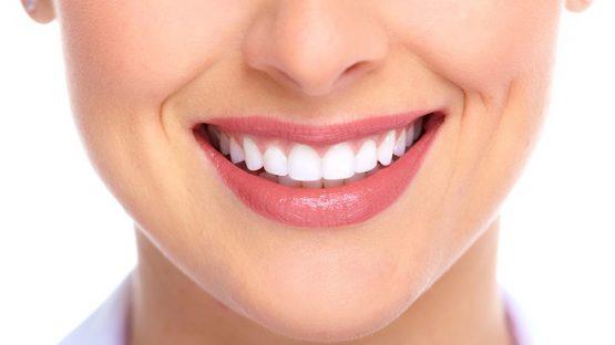 Tẩy răng trắng dịp Tết cần lưu ý những gì?