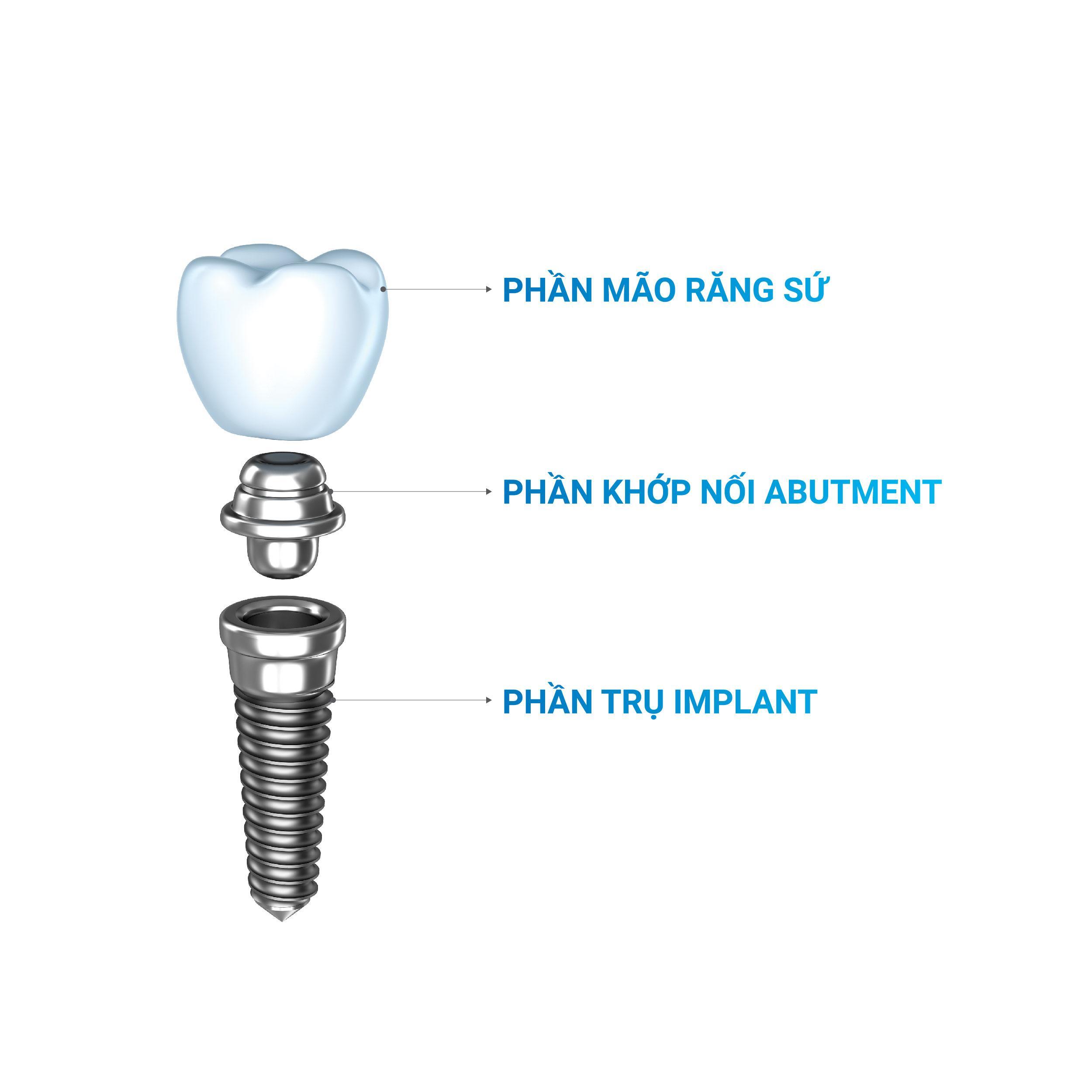 tru-rang-implant