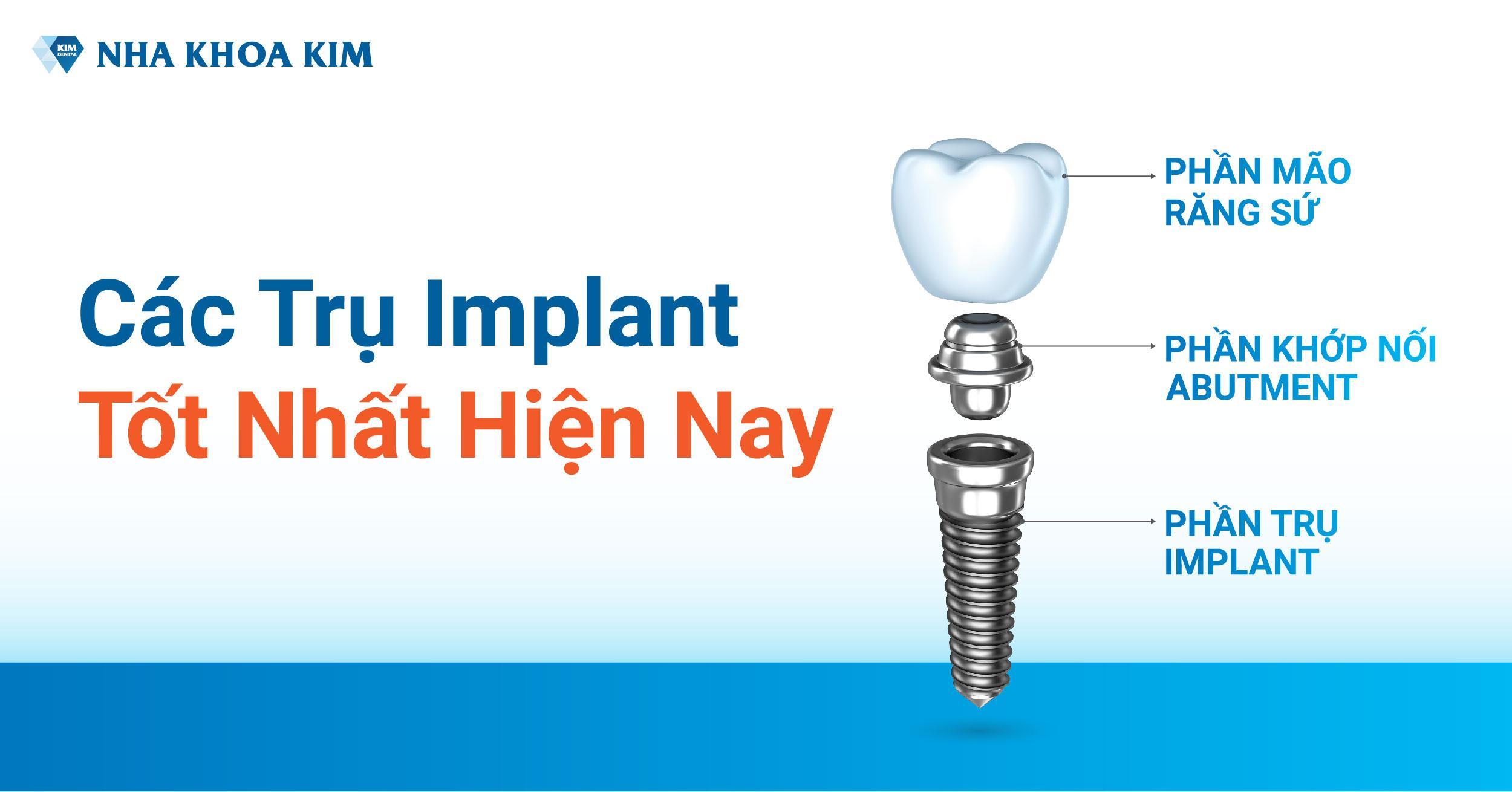 Các Trụ Implant Tốt Nhất Hiện Nay