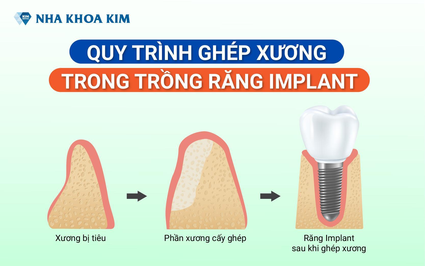 quy-trinh-ghep-xuong-implant