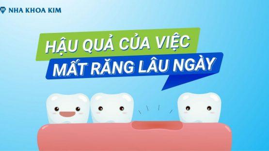 Hậu Quả Của Việc Mất Răng Lâu Ngày