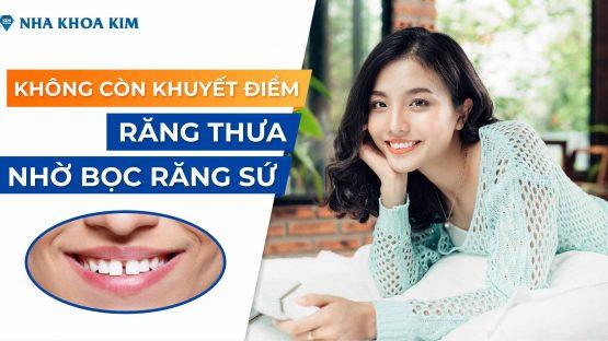 Không Còn Khuyết Điểm Răng Thưa Nhờ Bọc Răng Sứ