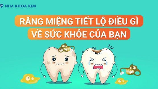 Răng Miệng Tiết Lộ Điều Gì Về Sức Khỏe Của Bạn