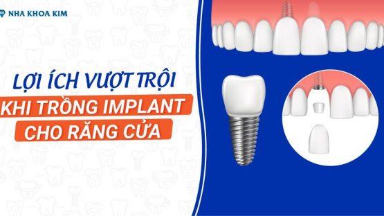 Lợi ích vượt trội khi trồng Implant cho răng cửa