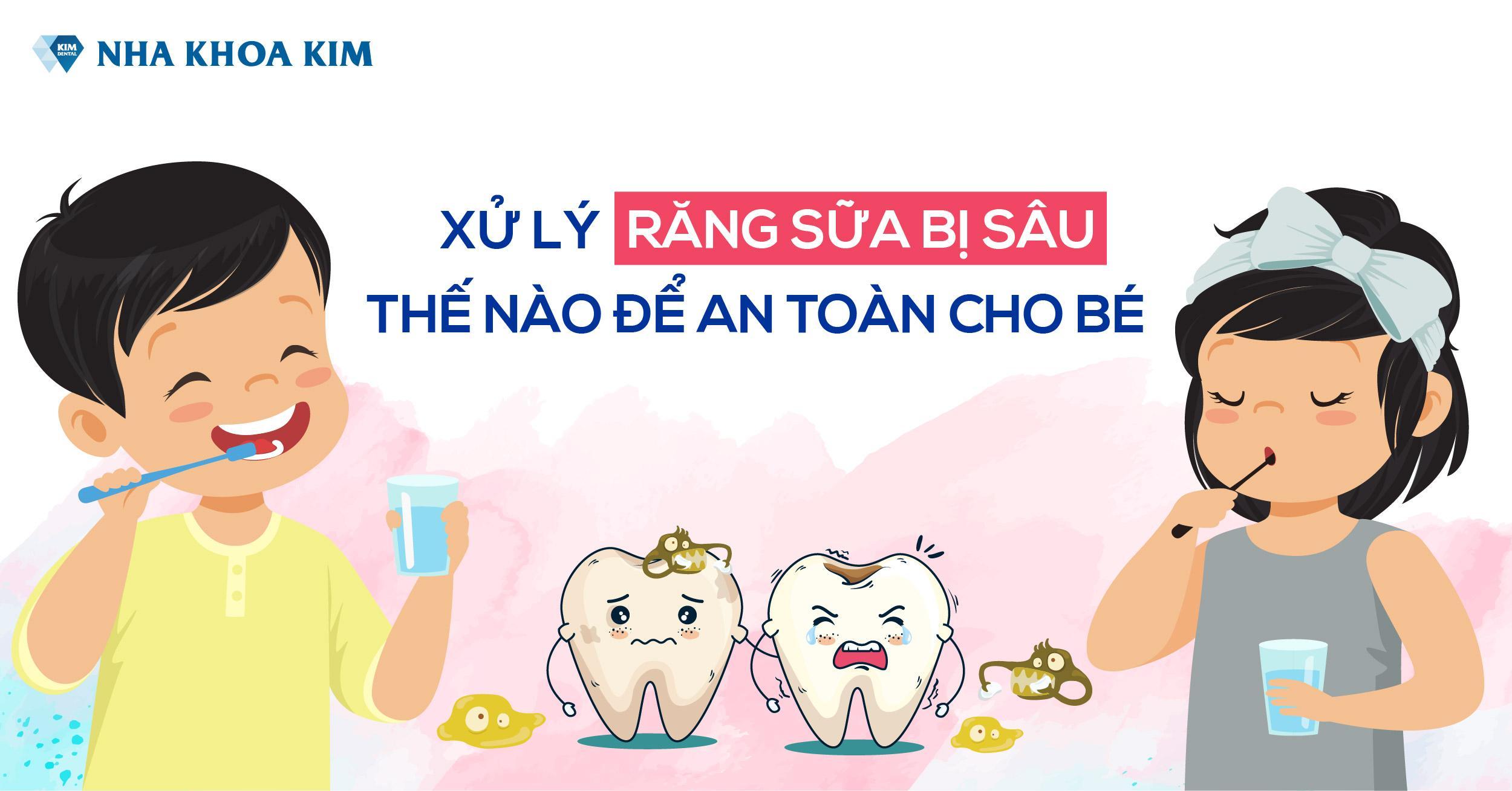 Xử Lý Răng Sữa Bị Sâu Để Bảo Vệ Sức Khỏe Răng Miệng Tốt Nhất Cho Bé