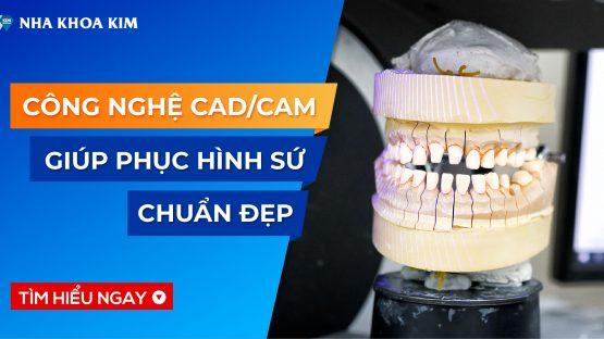 Tìm hiểu công nghệ CAD/CAM trong phục hình sứ chuẩn đẹp tại Nha Khoa Kim