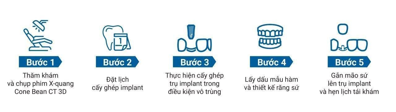 quy trình trồng răng với trụ implant
