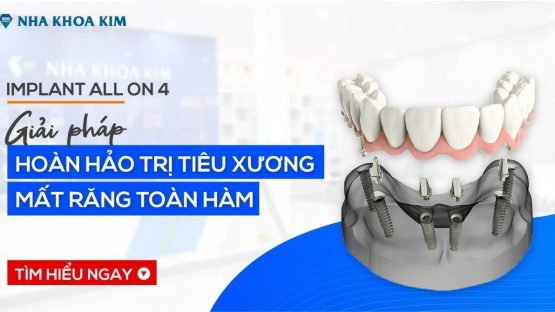 Implant All On 4 - Giải Pháp Hoàn Hảo Cho Trường Hợp Tiêu Xương, Mất Răng Toàn Hàm