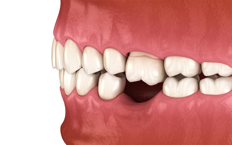 trong-rang-implant-vinh-vien