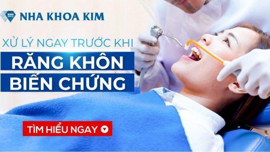 Xử lý ngay trước khi răng khôn biến chứng, ảnh hưởng tới răng cấm