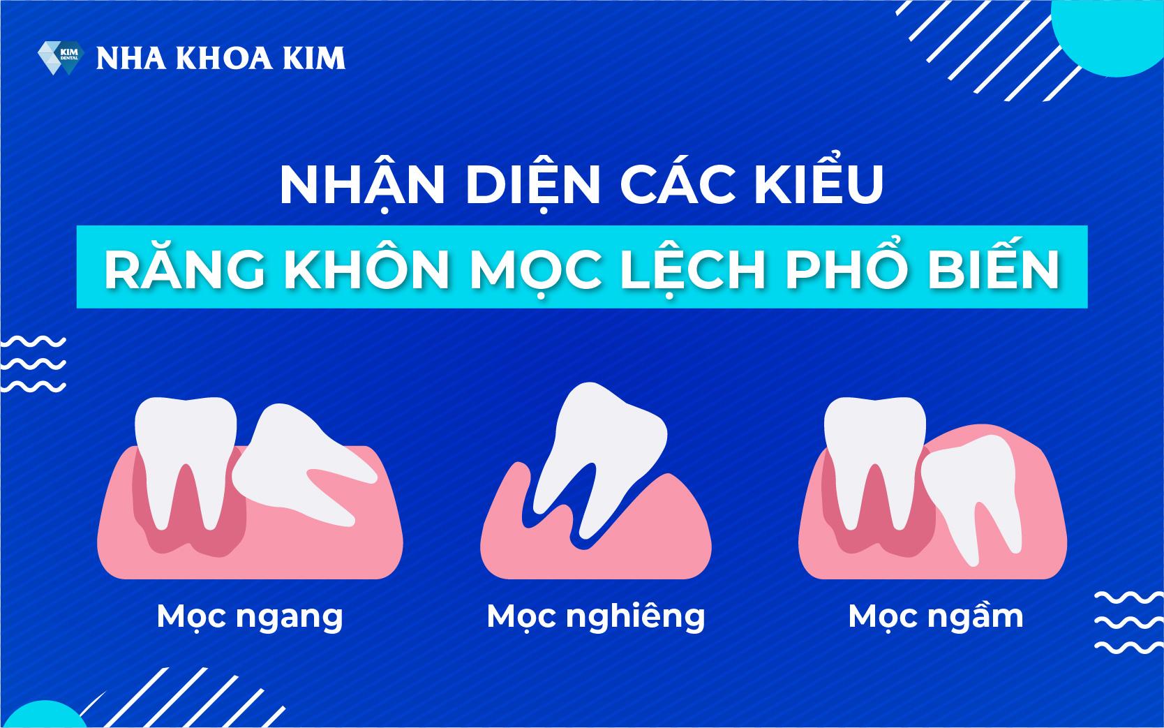 cac-kieu-rang-khon