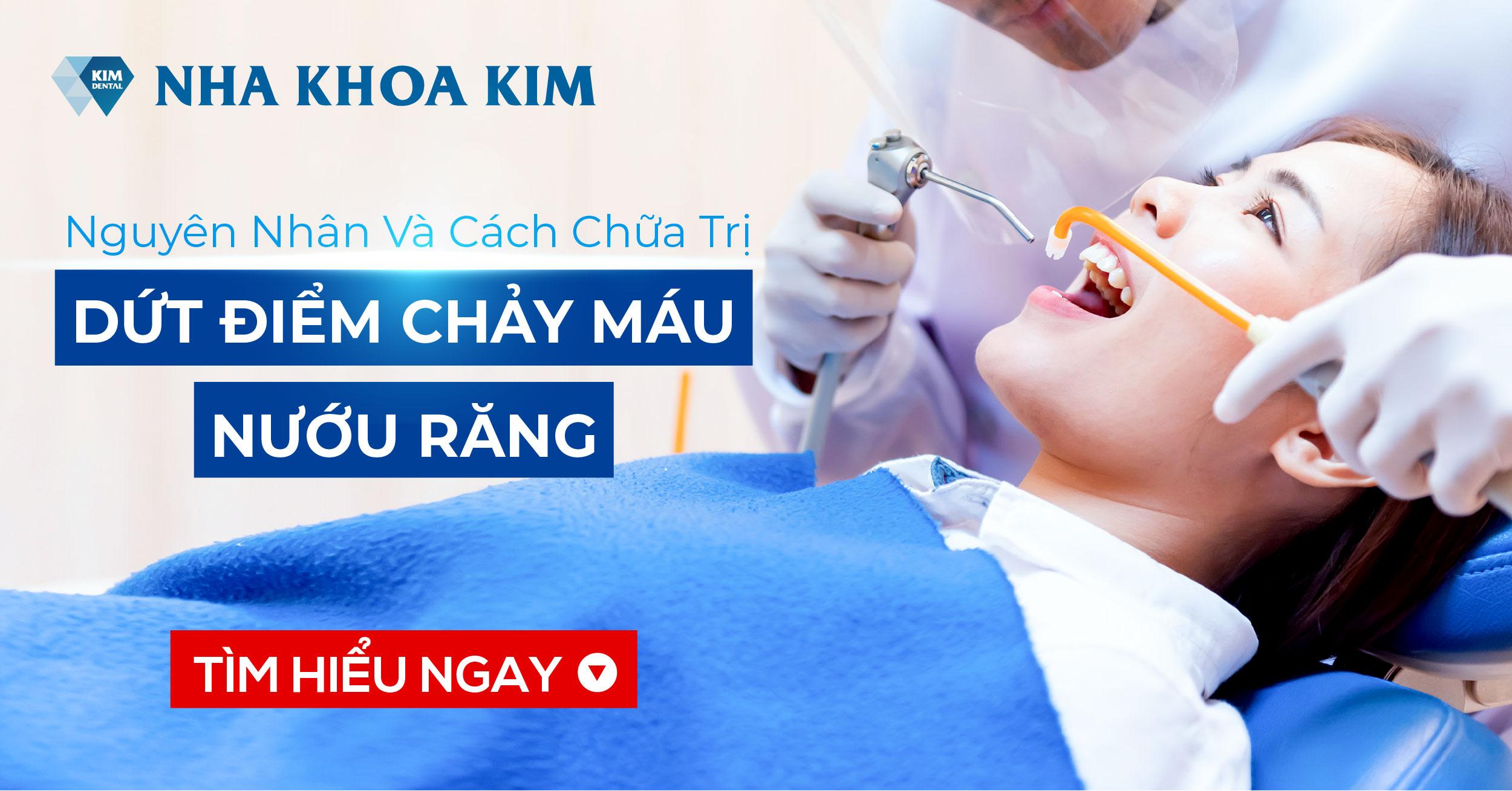 Nguyên Nhân Và Cách Chữa Trị Dứt Điểm Chảy Máu Nướu Răng