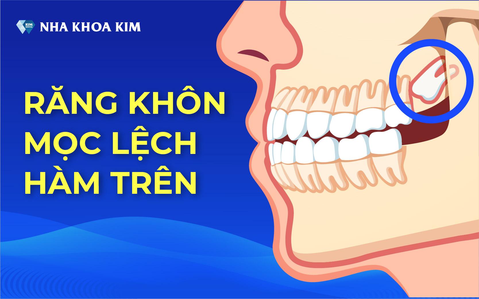 rang-khon-moc-lech-ham-tren