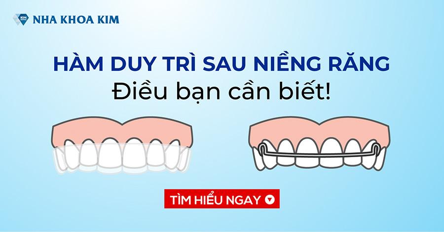 Những Điều Bạn Cần Biết Về Hàm Duy Trì Sau Niềng Răng
