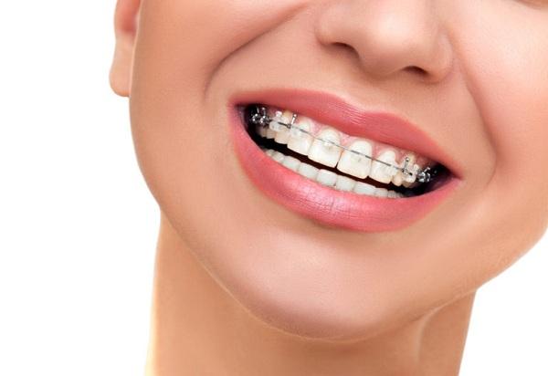 Niềng răng không không làm răng yếu đi, trừ khi tay nghề bác sĩ không cao, kỹ thuật không tốt, vật liệu không đạt chuẩn