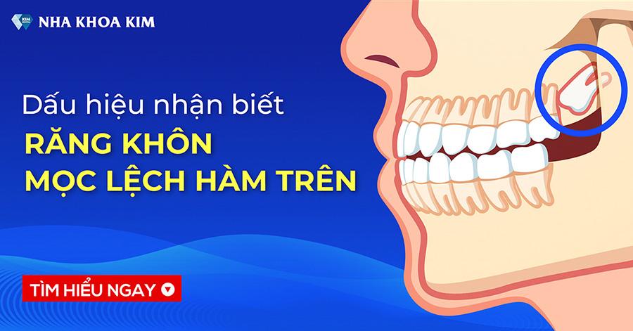 Dấu hiệu nhận biết răng khôn mọc lệch hàm trên