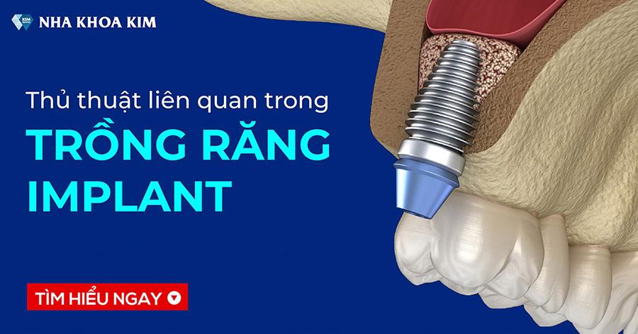 Những thủ thuật liên quan khi trồng răng Implant tại Nha Khoa Kim