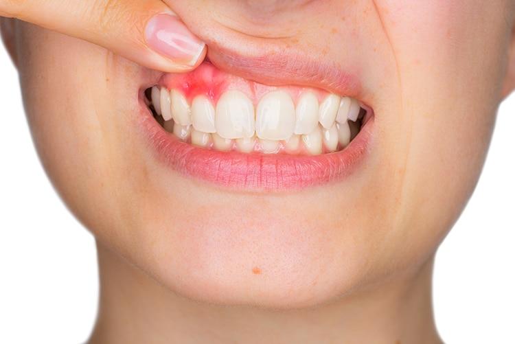 viêm lợi do bọc răng sứ