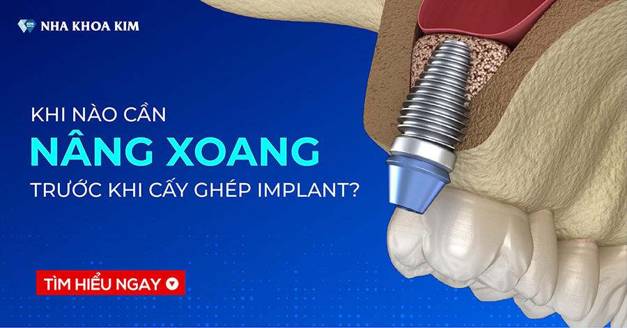 Nâng xoang là gì? Khi nào cần nâng xoang trước khi cấy ghép Implant?
