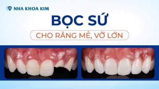 Bọc răng sứ cho răng mẻ, vỡ lớn tại hệ thống Nha Khoa Kim