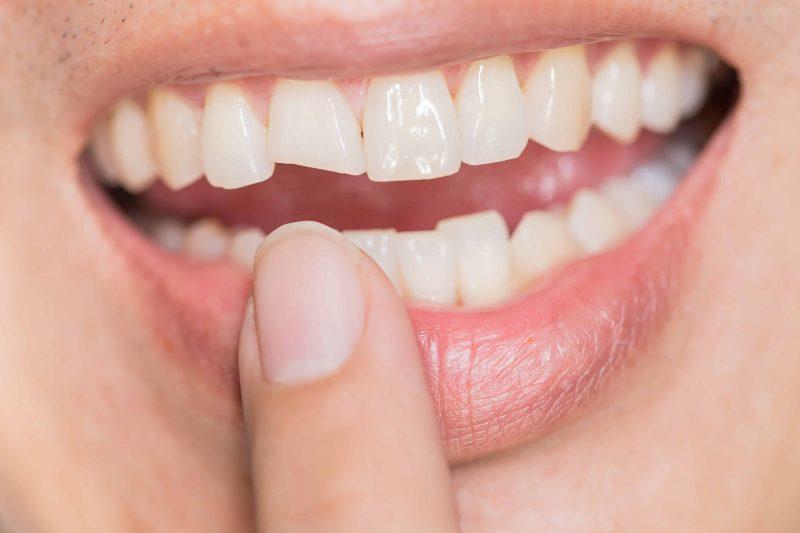 bọc răng sứ cho răng mẻ 1