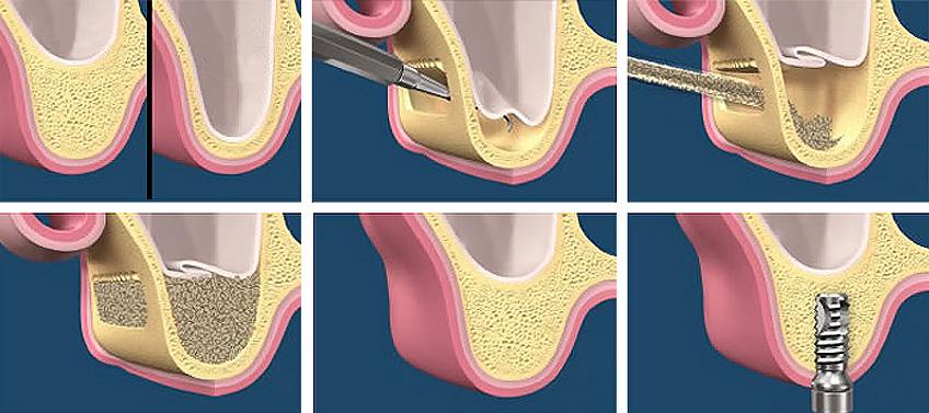 nâng xoang khi cấy ghép implant