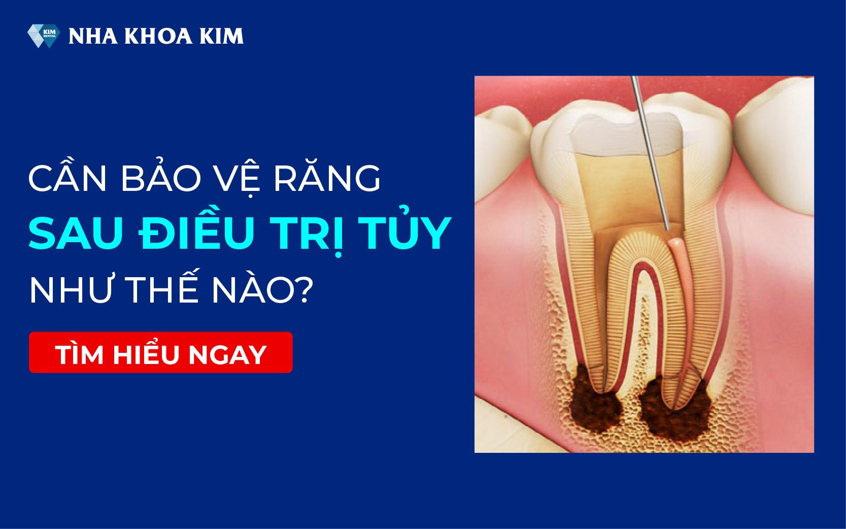 Cần bảo vệ răng sau điều trị tủy như thế nào?