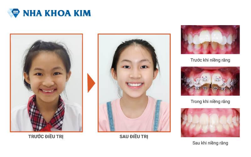 Chi phí niềng răng Nha Khoa Kim (11)