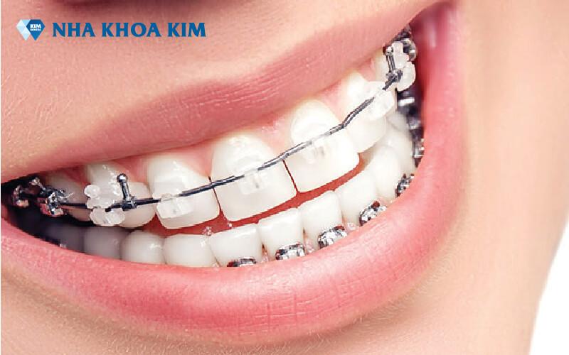 Chi phí niềng răng Nha Khoa Kim (2)