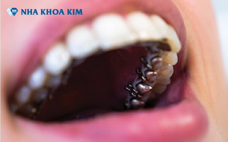 Chi phí niềng răng Nha Khoa Kim (4)