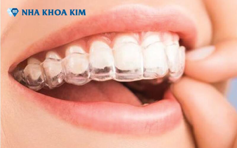 Chi phí niềng răng Nha Khoa Kim (5)