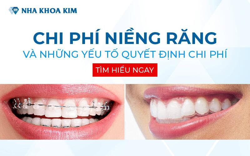 Chi phí niềng răng và những yếu tố quyết định chi phí