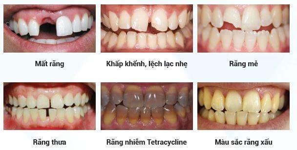 Các trường hợp nên bọc răng sứ Nha Khoa Kim