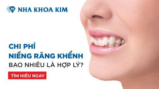 Chi phí niềng răng khểnh bao nhiêu là hợp lý?